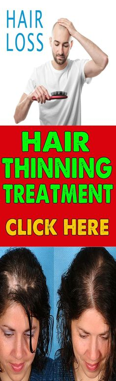 Hair Loss Treatment For Men 2017 #hairloss #hairlossremedyformen