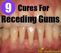 9 Natural Cures For Receding Gums - Cosas Que Hacer Para Una Boca Sana Gum Health, Teeth Health, Healthy Teeth, Dental Health, Dental Care, Health And Beauty Tips, Health And Wellness, Health Tips, Natural Health Remedies