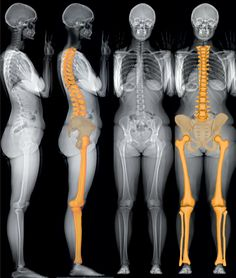 X-RAY Skeletal Anatomy View. Anatomy Study. Figure Reference. Anatomy Reference. #Figure_Drawing #Anatomy #X-Ray #Skeleton