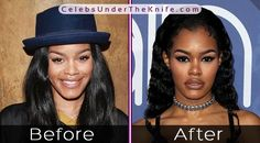Teyana Taylor's Wonderful Nose Job - Before + After Pics. Check out the pics for yourself and we'll let you decide whether they've had plastic surgery or not! Rhinoplasty Before And After, Celebrity Plastic Surgery, Teyana Taylor, Before And After Pictures, Nose Jobs, Female, Celebrities, Natural Beauty, Rapper