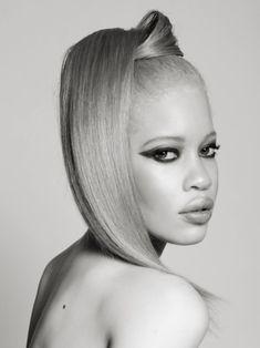 Diandra Forrest albino African-American fashion model