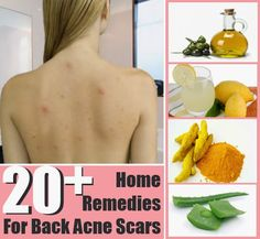 20+ Top Home Remedies for Back Acne Scars