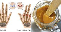 Oggi imparerete come si prepara un potente anti-infiammatorio naturale, che è eccezionale per il trattamento di artrite, reumatismi e dolori muscolari. L'i