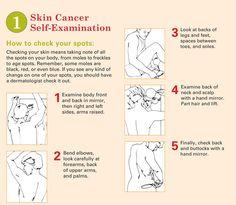 Skin Cancer Self-Exam: Mole Chart   The Dr. Oz Show, incl. printable Mole chart
