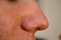 Blackheads are clogged pores on the face and nose that are caused due to oily skin. It occur when skin pores become clogged with excess sebum oil, dirt and dead skin cells. Beauty Care, Diy Beauty, Beauty Skin, Beauty Makeup, Beauty Hacks, Get Rid Of Blackheads, Clear Blackheads, Beauty Tips, Hair And Beauty