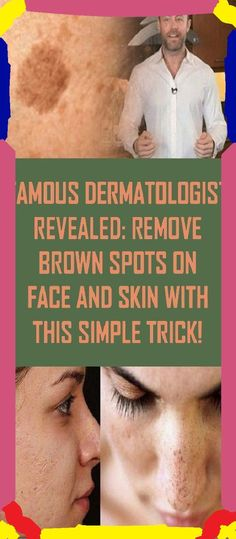 Get Rid Of The Brown Marks On Your Skin With This Simple Trick