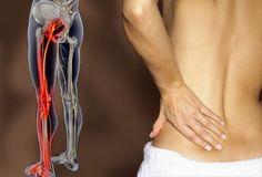 Ciatica y lumbago son dos afecciones de la espalda muy frecuentes, que se pueden aliviar con técnicas similares.