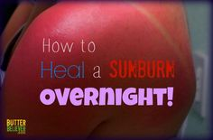 Sunburn Remedy: Instant Relief and Overnight Healing   I grabbed my sunburn remedy ingredients, and in just a few minutes, the stinging stopped and I was on my way to burn-free skin! By the very next day, it was basically gone. This works way better for me than aloe vera ever did!  Heal your sunburn overnight in just 2 steps Remember this remedy the next time you get a sunburn, and your skin will thank you. It'll heal the burn much more quickly than you ever thought was possible!