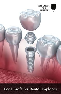 2cf3b7c49e00 Understood Dental Care Videos  dentalimplantsbeforeafter   ToothImplantCavities