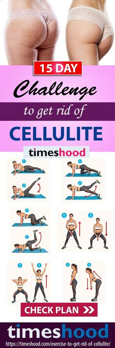 How to get rid of cellulite on buttocks and thighs fast? 6 Exercise, 2 weeks challenge to get rid of Cellulite workout at home. 20-minute workout routine to get rid of cellulite and get firm legs, and smooth thighs. Best #exercise for #butt and #thighs. timeshood.com/...