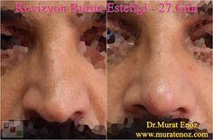 Nose Job in Istanbul – Rhinoplasty in Istanbul – Before and After Rhinoplasty Photos - Tip Plasty - Nasal Tip Reshaping - Lifting The Nasal Tip in Istanbul   http://www.muratenoz.com/2016/10/rhinoplasty-in-istanbul.html   #rhinoplastyistanbul #nosetipsurgeryistanbul #entdoctoristanbul #kbbuzmanibakirkoy #drmuratenoz #entspecialistbakirkoy #burunucuestetimerkezi #burunucuestetigibakirkoy #rhinoplastyistanbul #tipplastyistanbul #burunucuoperasyonu #burunestetigidoktoru…