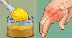 Professors Predicted I Would Die With Psoriasis. But Contrarily to their Prediction, I Cured Psoriasis Easily, Permanently In Just 3 Days. Health Remedies, Home Remedies, Natural Remedies, Natural Treatments, Health Tips, Health And Wellness, Psoriasis Remedies, Psoriasis Arthritis, Turmeric Health Benefits