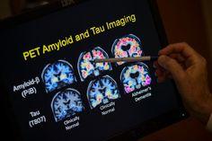 Latest Alzheimer's Flop Raises Doubts About 'Amyloid Hypothesis'