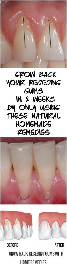 Grow Back Your Receding Gums In No Time With The Help Of These Natural Remedies – Natural Healing Education Teeth Health, Oral Health, Healthy Teeth, Dental Health, Health Care, Gum Health, Dental Hygiene, Dental Care, Natural Health Remedies