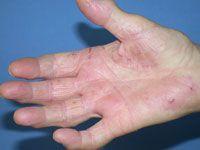 contact dermatitis to Asteraceae/Compositae family
