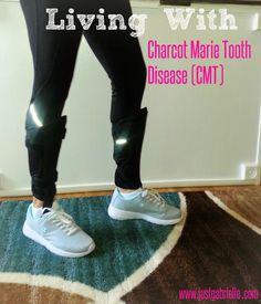 CMT Disease
