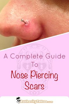 7 Best Nose Piercing Bump images in 2017 | Nose piercing bump, Nose