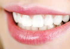 """Natural Teeth Whitening Remedies Natural Teeth Whitening : How To Whiten Teeth Naturally! - If you want to know """"How to whiten teeth naturally"""", then read this article. We bring for you super easy and effective tips of natural teeth whitening. Best Teeth Whitening Kit, Teeth Whitening Remedies, Charcoal Teeth Whitening, Natural Teeth Whitening, Skin Whitening, Crest Whitening, Make Teeth Whiter, Clean Teeth, Hair Mask For Damaged Hair"""