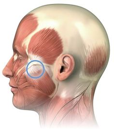 How to find and massage Perfect Spot #7, a common trigger point in the masseter muscle of the jaw.