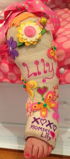 A decorated cast for my toddler with a broken leg:(