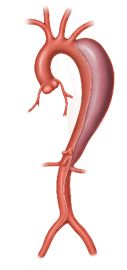 An aneurysm occurs when the wall of an artery is weakened and bulges due to the blood pressure on the weakened wall artery. This weakened area can rupture and cause internal bleeding. Abdominal Aortic Aneurysm, Turner Syndrome, Bypass Surgery, Smoking Cessation, Blood Vessels, Ultrasound, Medical Conditions, Group, Type