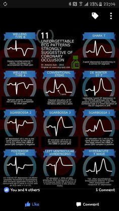 Unforgettable ECG Patterns Strongly Suggestive of Coronary Occlusion EKG InfographicsEKG Infographics Nursing School Notes, Medical School, Ekg Interpretation, Ecg, Nursing Information, Critical Care Nursing, Cardiac Nursing, Emergency Medicine, Nursing Tips