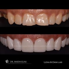 #emax #hollywoodsmile #smiledesign #digitalsmiledesign #dsd #drbasemelias#cosmeticdentistry #cosmeclic #smile #beauty #veneers #dentalclinic #photography #venus by drbasemelias Our Cosmetic Dentistry Page: http://www.lagunavistadental.com/services/cosmetic-dentistry/ Google My Business: https://plus.google.com/LagunaVistaDentalElkGrove/about Our Yelp Page: http://www.yelp.com/biz/fenton-krystle-dds-laguna-vista-dental-elk-grove-3 Our Facebook Page: https://www.facebook.com/LagunaVistaDental…