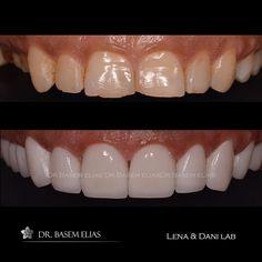 #emax #hollywoodsmile #smiledesign #digitalsmiledesign #dsd #drbasemelias#cosmeticdentistry #cosmeclic #smile #beauty #veneers #dentalclinic #photography #venus by drbasemelias Our Cosmetic Dentistry Page: http://www.lagunavistadental.com/services/cosmetic-dentistry/ Google My Business: https://plus.google.com/LagunaVistaDentalElkGrove/about Our Yelp Page: http://www.yelp.com/biz/fenton-krystle-dds-laguna-vista-dental-elk-grove-3 Our Facebook Page: https://www.facebook.com/LagunaVistaDental…