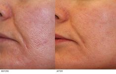 Laser Genesis- a no-downtime treatment for refining skin's texture, reducing pore size, improving redness, and wrinkle reduction.