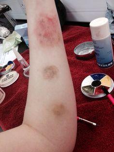 Bruising makeup