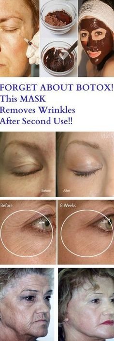 FORGET ABOUT BOTOX! This MASK Removes Wrinkles After Second Use! – Stay Healthy Magazine