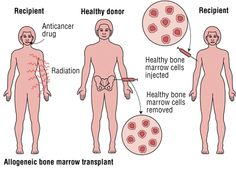 Kidney transplant surgery in India is the one best option for surgery due to compare with it to other countries as united kingdom of America , Canada , Japan and Australia because in India there is expert Doctor surgeon corporative staff and advances machinery and not expense like in Europe or others countries.
