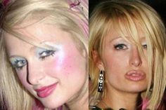 20 #Celebrities with Bad Plastic Surgery...   All Women Stalk