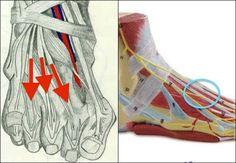La tendinitis de los extensores de los dedos de los pies es la inflamación de los tendones del empeine, estructuras fibrosas que unen músculos y hueso.