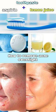 How to remove acne overnight - http://WomenIdeas.net