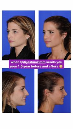 Naomie Olindo from Southern Charm's Beauty Secrets – Blushing in Hollywood Naomie Olindo's nose job before and years after surgery Naomie Olindo from Southern Charm's Beauty Secrets – Blushing in Hollywood Nose Plastic Surgery, Nose Surgery, Skin Secrets, Beauty Secrets, Beauty Hacks, Skin Tips, Cheer Makeup, Loosing Weight