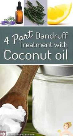 DIY Beauty Fashion: How to get rid of dandruff fast and effectively at home with these amazing remedies