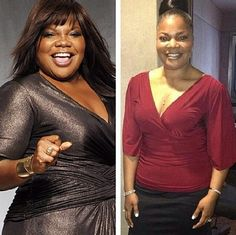 cnn weight loss surgery