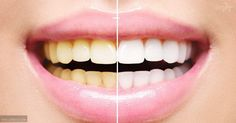 8 Natural Ways To Whiten Your Teeth