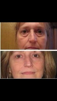 NeriumAD is changing lives www.annkiss.nerium.com