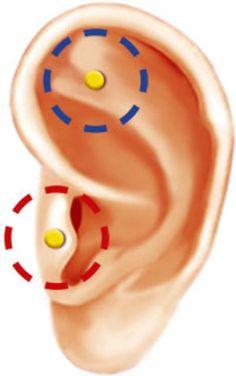 точки на ушах для похудения фото зачем