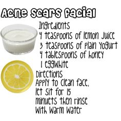 Acne scars facial: I'm going to test this once and for all.