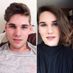 Over a year and a half of hair growth and 6 months on T-blockers Transgender Before And After, Mtf Before And After, Male To Female Transgender, Transgender Girls, Mtf Hrt, Trans Mtf, Mtf Transition, Male To Female Transformation, Hair Growth Treatment