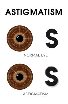 Find out what astigmatism is and how it affects your vision in this easy-to-understand video! Opthalmic Technician, Optometry School, Eye Anatomy, Eye Facts, Vision Therapy, Cold Home Remedies, Eye Doctor, Care Logo, Anatomy And Physiology