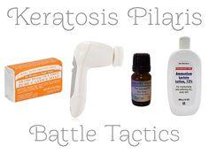 treating keratosis pilaris on face: use tea tree infused soap then exfoliate.
