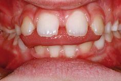 1. Nei soggetti affetti da deglutizione atipica la lingua si interpone fra entrambe le arcate durante gli atti deglutitori scaricando su di esse una forza pressoria enorme.