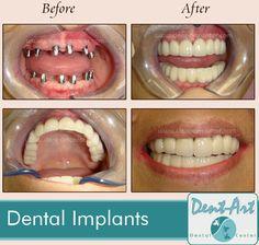 Mexico Dental Implants / Dent Art Clinic Tijuana Dr. Luis Lugo