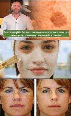 Dermatologista famoso revela como acabar com manchas marrons no rosto e na pele com dica simples #dermatologista #manchas #comotiramanchasdorosto #comotiramanchas #dicas