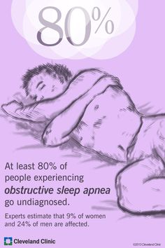 At least of peple experiencing obstructive sleep apnea go undiagnosed. Experts estimate that of women and of men are affected. Severe Sleep Apnea, What Causes Sleep Apnea, Cure For Sleep Apnea, Sleep Apnea Treatment, Sleep Apnea Remedies, Foot Fungus Treatment, Home Remedies For Snoring, How To Stop Snoring, Sleep Studies