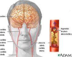 placa de aterosclerose
